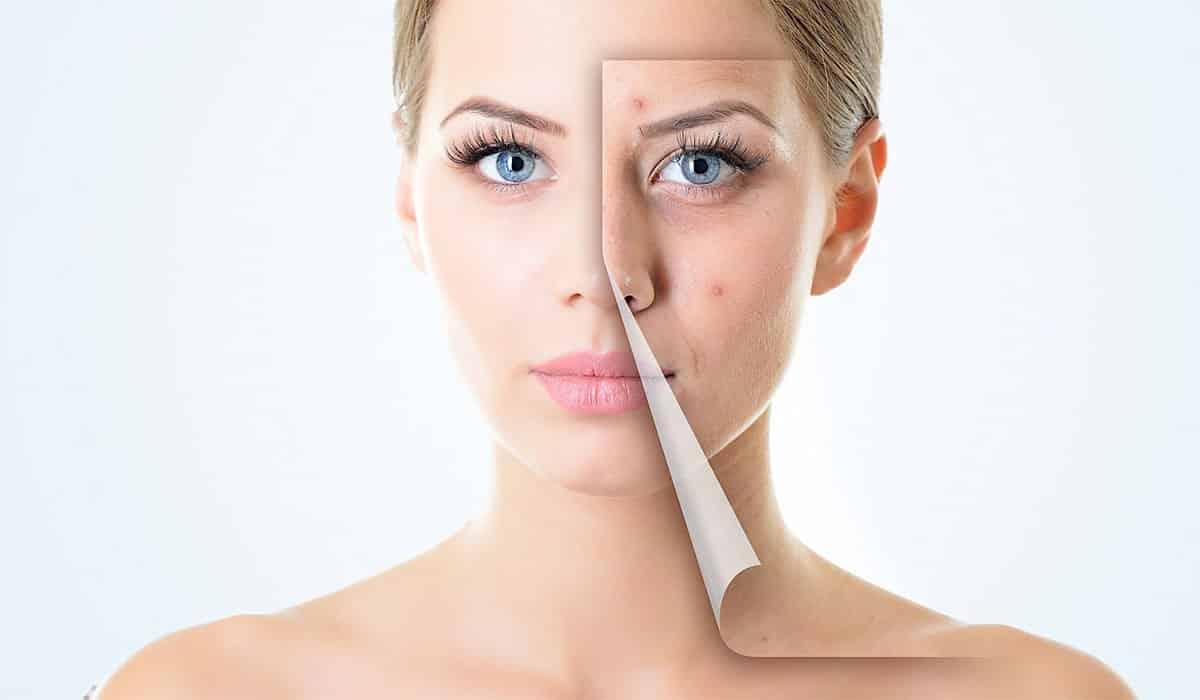 طريقة التخلص من حبوب الوجه في يوم واحد