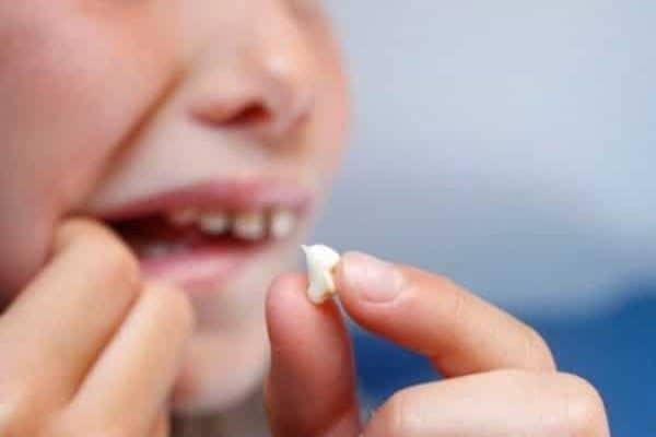 تفسير حلم سقوط الأسنان في المنام للعزباء كنوزي