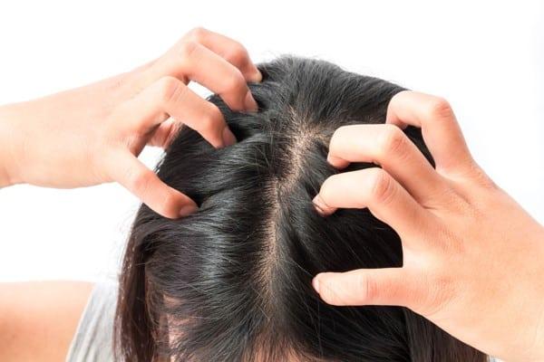علاج قشرة الشعر الشديدة بالأعشاب