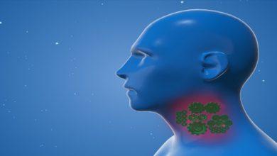 علاج التهاب الحلق عند الرضع